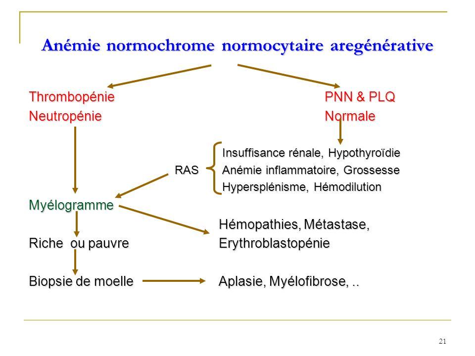 Anémie normochrome normocytaire aregénérative Thrombopénie PNN & PLQ Neutropénie Normale Insuffisance rénale, Hypothyroïdie Insuffisance rénale, Hypot