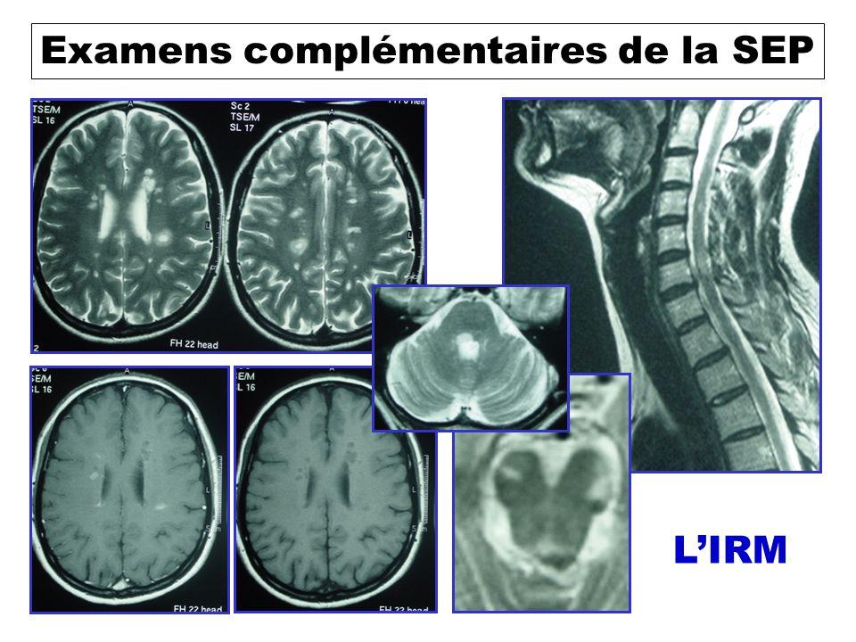 Examens complémentaires de la SEP La ponction lombaire Recherche de signe dinflammation du LCR Anxiolytique, Anesthésie de la peau, Prévention des céphalées post-PL