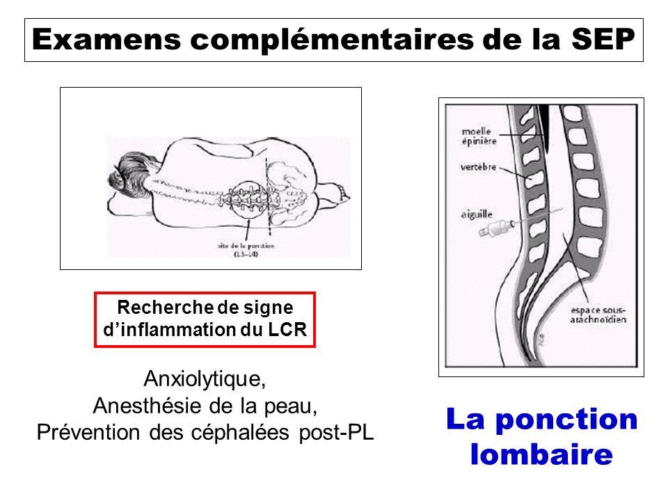 Stimulus sensoriel Cerveau Examens complémentaires de la SEP Recherche dun ralentissement de la réponse (atteinte de la myéline) Les potentiels évoqués