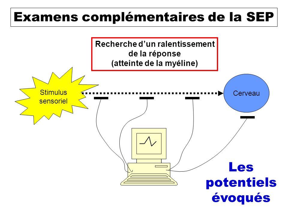 Le diagnostic de SEP Clinique Examens Évolution