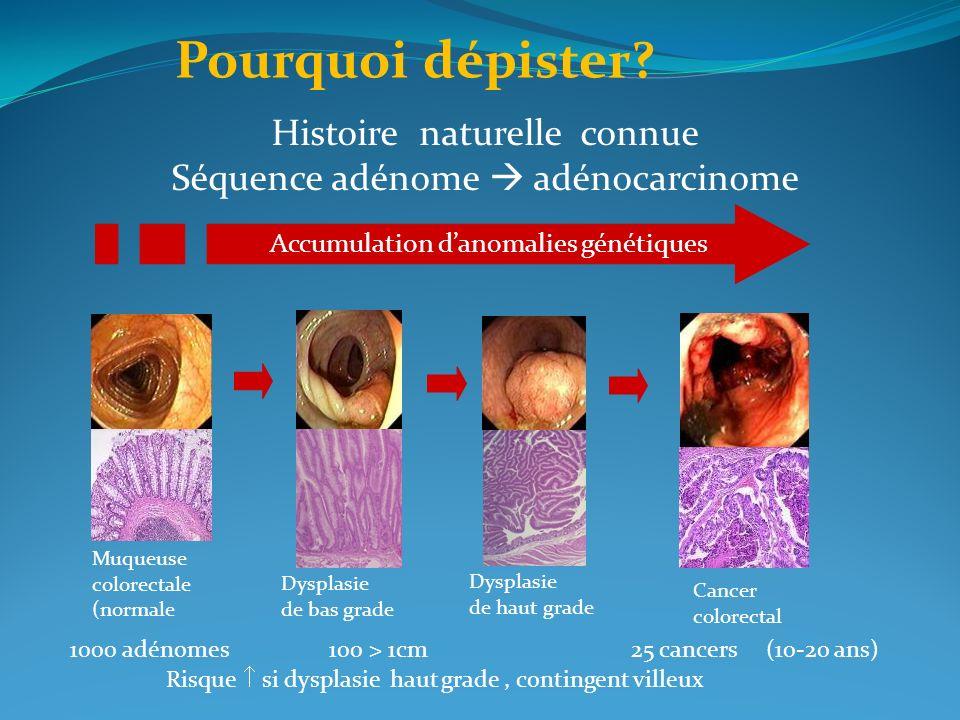 Muqueuse colorectale (normale Dysplasie de bas grade Dysplasie de haut grade Cancer colorectal Histoire naturelle connue Séquence adénome adénocarcino