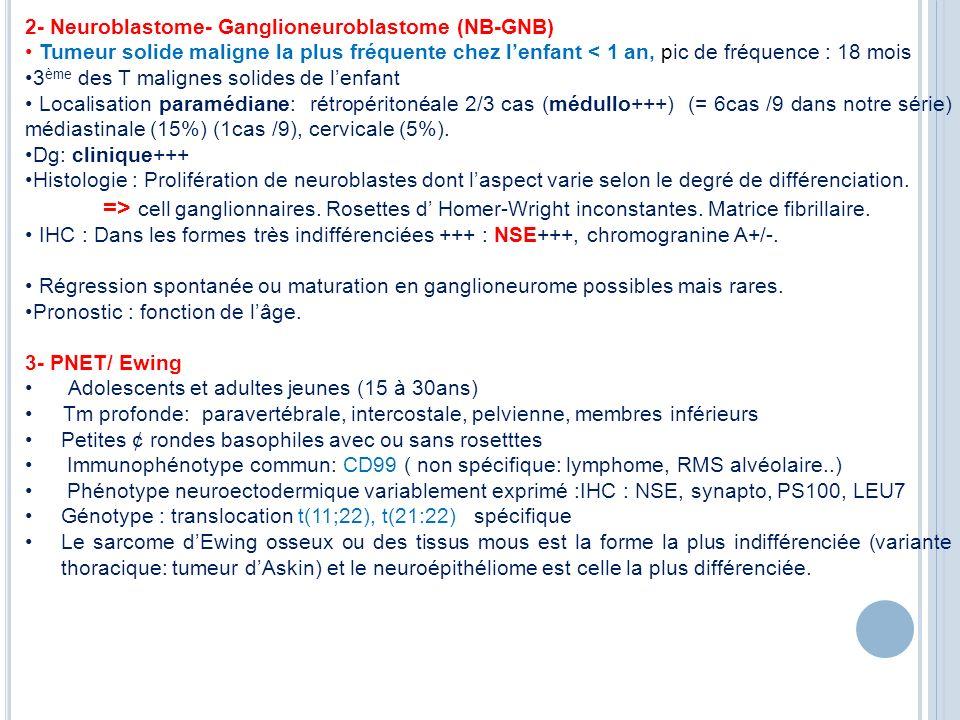 2- Neuroblastome- Ganglioneuroblastome (NB-GNB) Tumeur solide maligne la plus fréquente chez lenfant < 1 an, pic de fréquence : 18 mois 3 ème des T ma