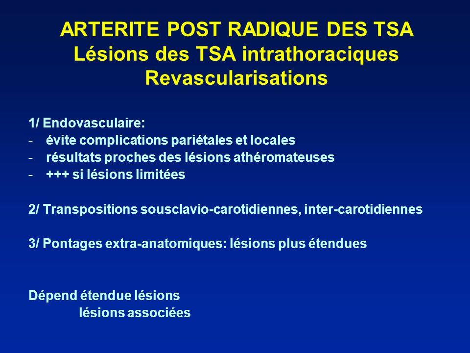 ARTERITE POST RADIQUE DES TSA Lésions des TSA intrathoraciques Revascularisations 1/ Endovasculaire: -évite complications pariétales et locales -résul