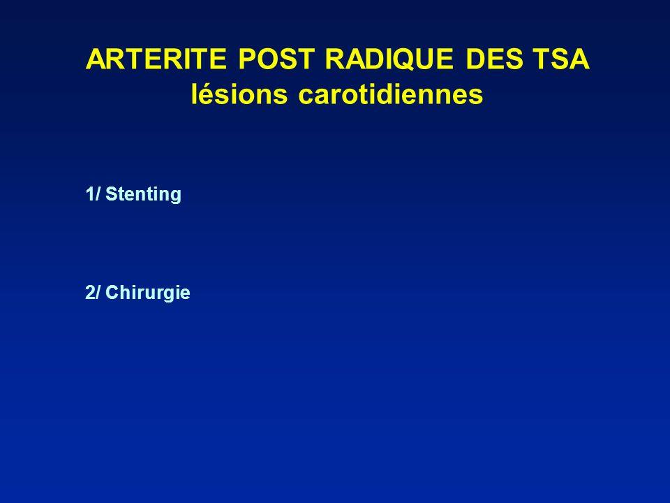 ARTERITE POST RADIQUE DES TSA lésions carotidiennes 1/ Stenting 2/ Chirurgie