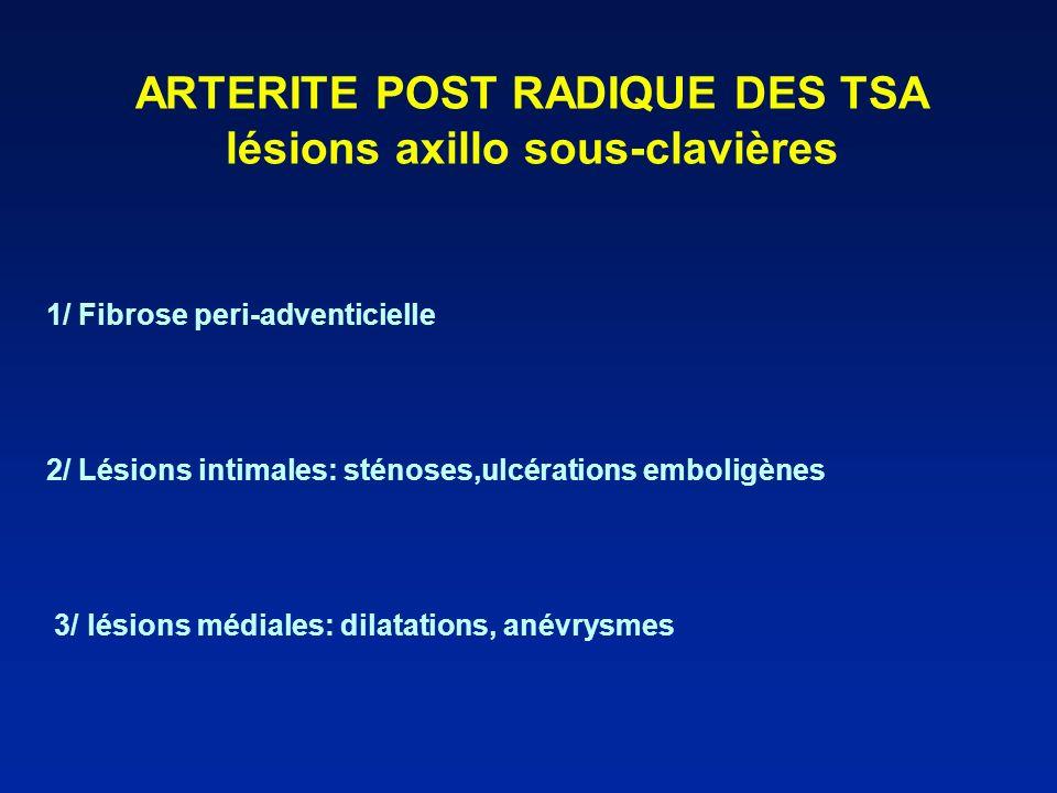 ARTERITE POST RADIQUE DES TSA lésions axillo sous-clavières 1/ Fibrose peri-adventicielle 2/ Lésions intimales: sténoses,ulcérations emboligènes 3/ lé