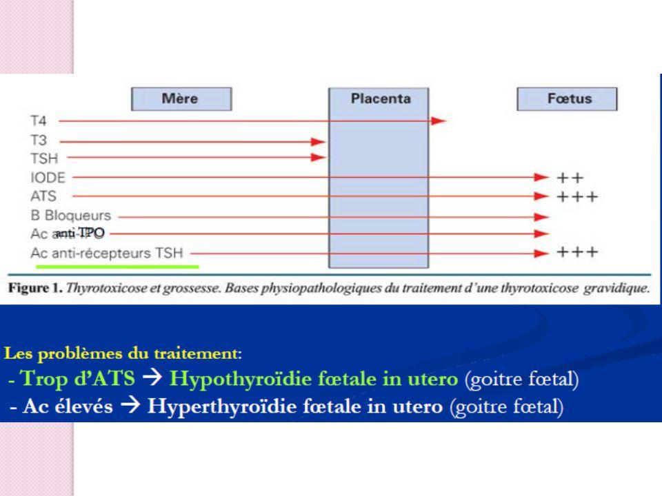 Risques fœtaux en labsence de traitement FCS Accouchement prématuré RCIU Mort fœtale in utero