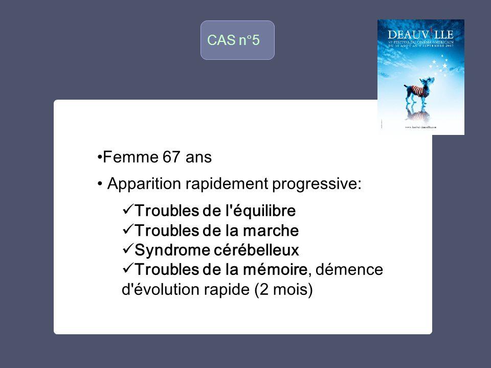 CAS n°5 o Femme 67 ans Apparition rapidement progressive: Troubles de l'équilibre Troubles de la marche Syndrome cérébelleux Troubles de la mémoire, d