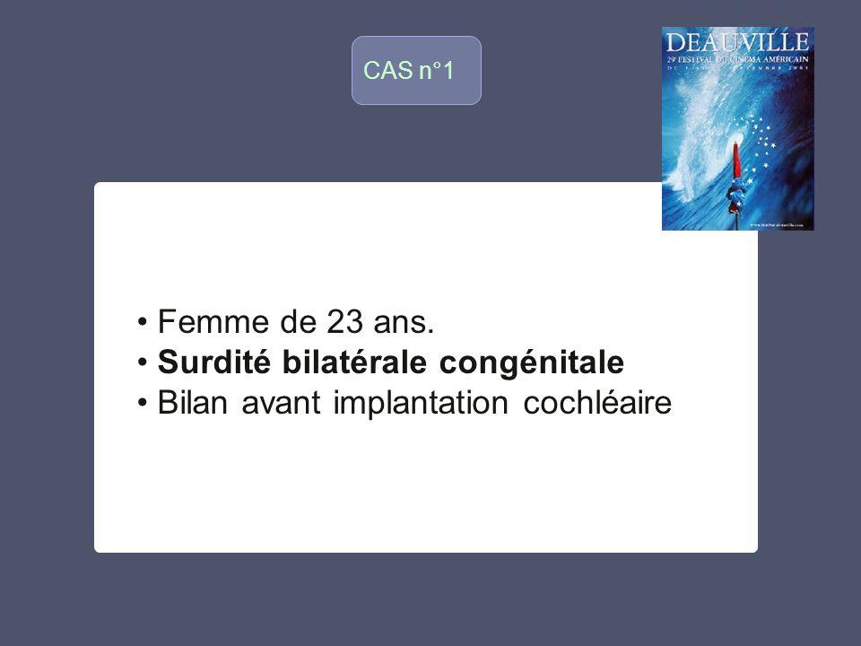 CAS n°1 o Femme de 23 ans. Surdité bilatérale congénitale Bilan avant implantation cochléaire