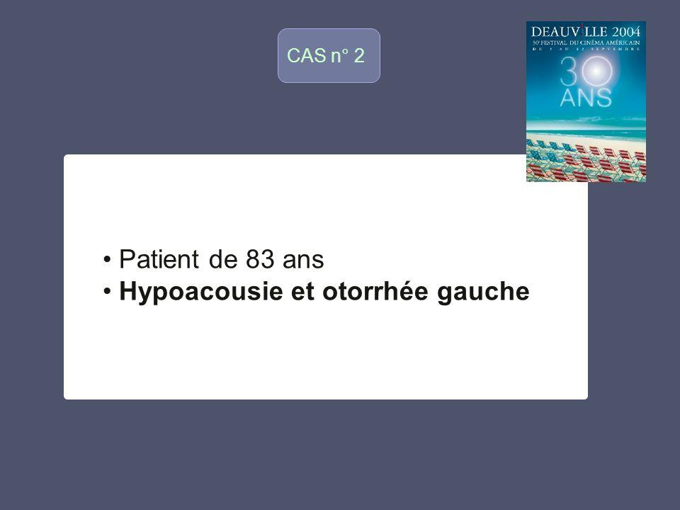 CAS n° 2 o Patient de 83 ans Hypoacousie et otorrhée gauche