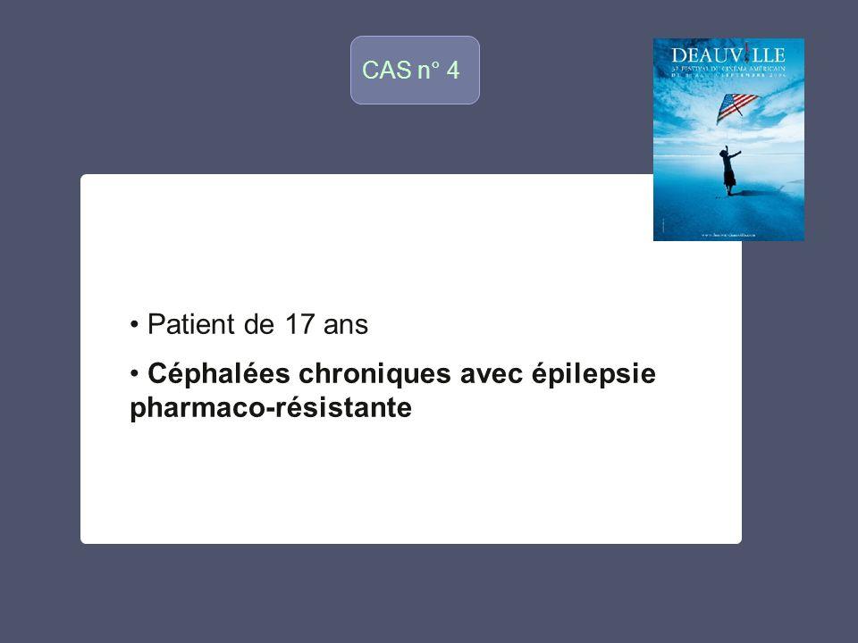 CAS n°8 o Patient de 35 ans Sans ATCD particulier Syndrome de Brown Séquard gauche dinstallation rapide