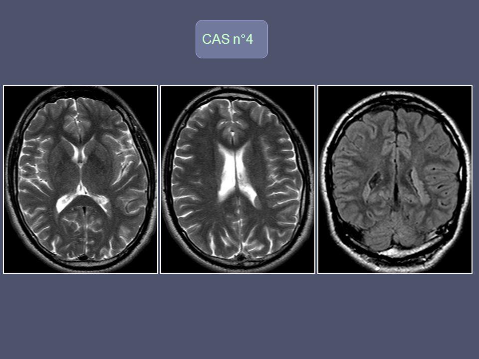 CAS n°5 o Femme 67 ans Apparition rapidement progressive: Troubles de l équilibre Troubles de la marche Syndrome cérébelleux Troubles de la mémoire, démence d évolution rapide (2 mois)