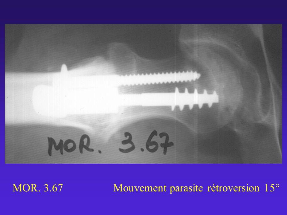 MOR. 3.67 Mouvement parasite rétroversion 15°
