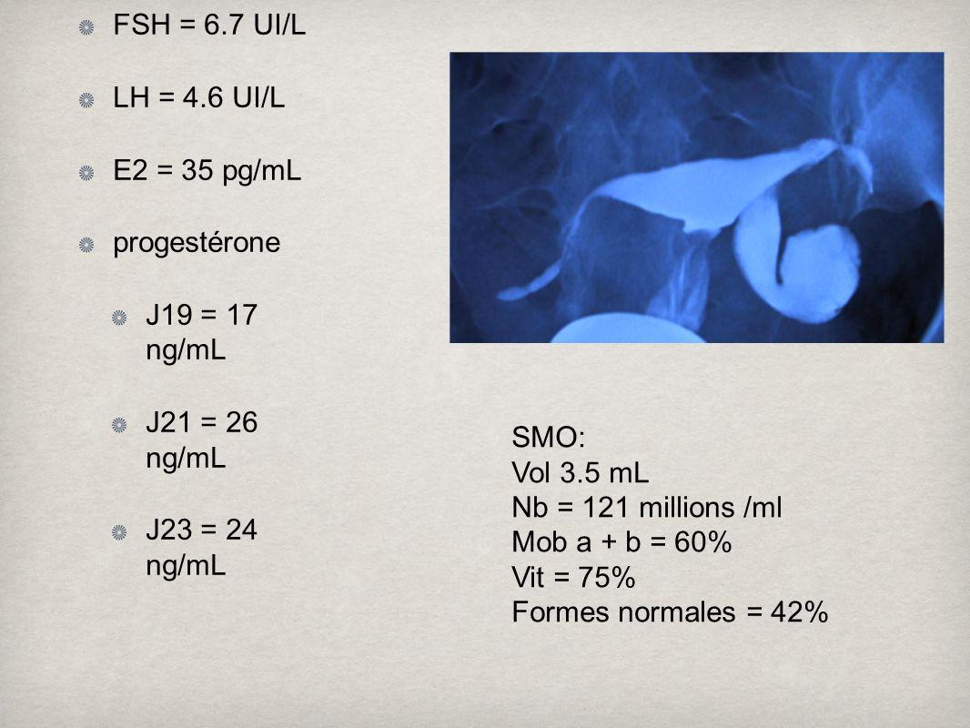 bilan à J3 FSH, LH, E2 progestéronémie en phase lutéale HSG spermogramme, spermocytogramme