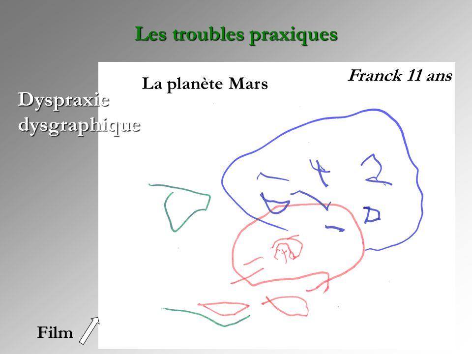 Dyspraxie dysgraphique Franck 11 ans La planète Mars Les troubles praxiques Film