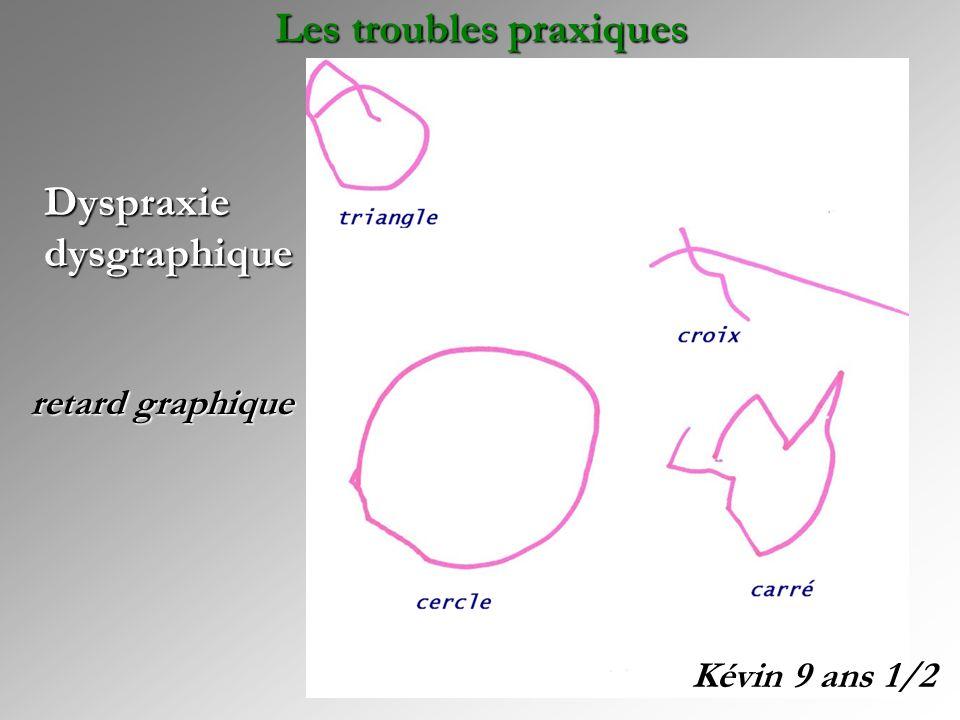 Dyspraxie dysgraphique Kévin 9 ans 1/2 retard graphique Les troubles praxiques