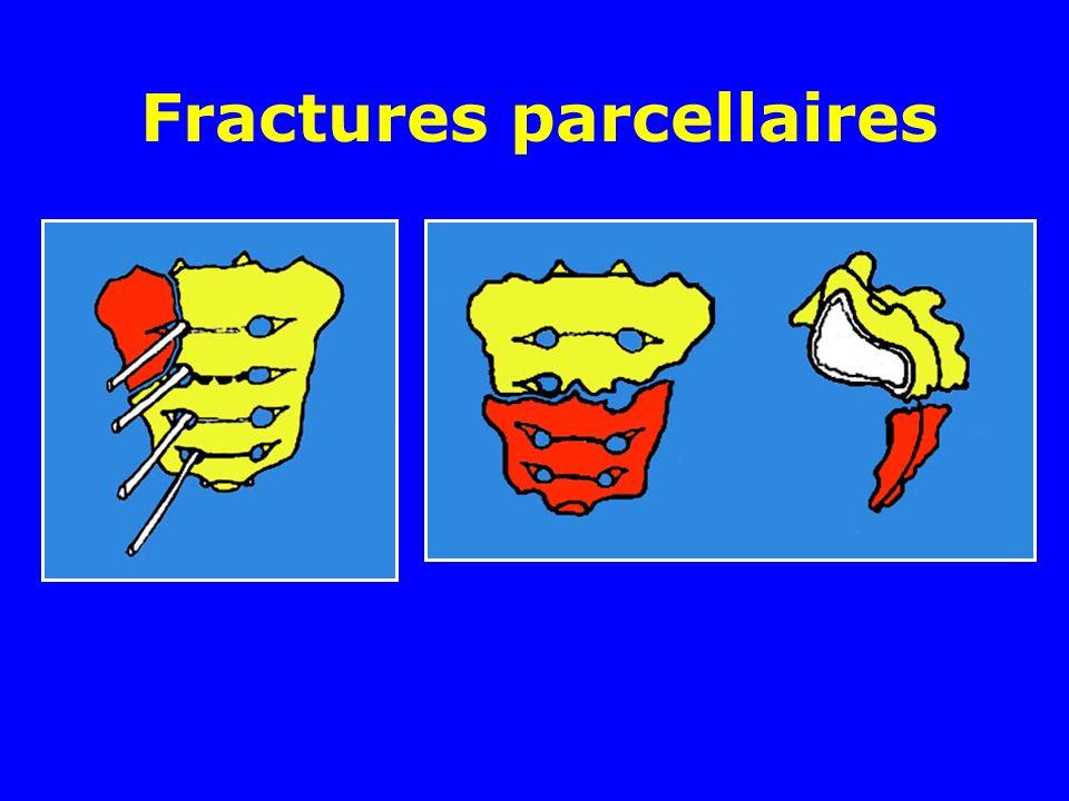 Fractures parcellaires