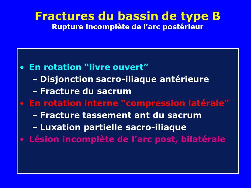 Fractures du bassin de type B Rupture incomplète de larc postérieur En rotation livre ouvert –Disjonction sacro-iliaque antérieure –Fracture du sacrum
