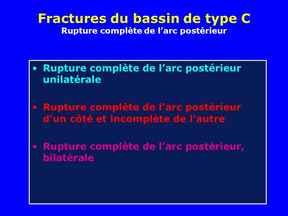 Fractures du bassin de type C Rupture complète de larc postérieur Rupture complète de larc postérieur unilatérale Rupture complète de larc postérieur dun côté et incomplète de lautre Rupture complète de larc postérieur, bilatérale