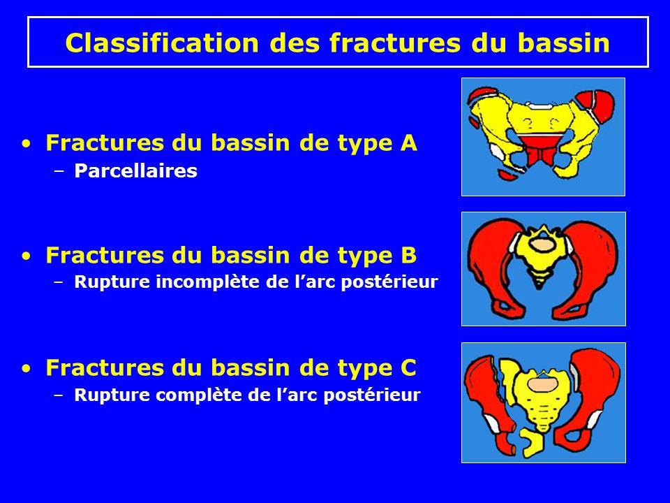 Classification des fractures du bassin Fractures du bassin de type A –Parcellaires Fractures du bassin de type B –Rupture incomplète de larc postérieur Fractures du bassin de type C –Rupture complète de larc postérieur