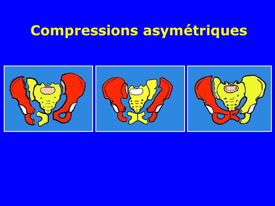 Compressions asymétriques