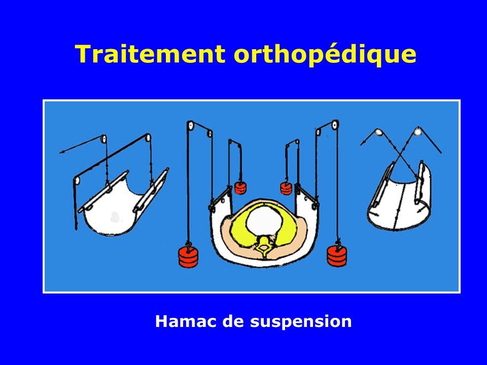 Traitement orthopédique Hamac de suspension