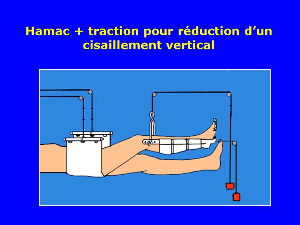 Hamac + traction pour réduction dun cisaillement vertical