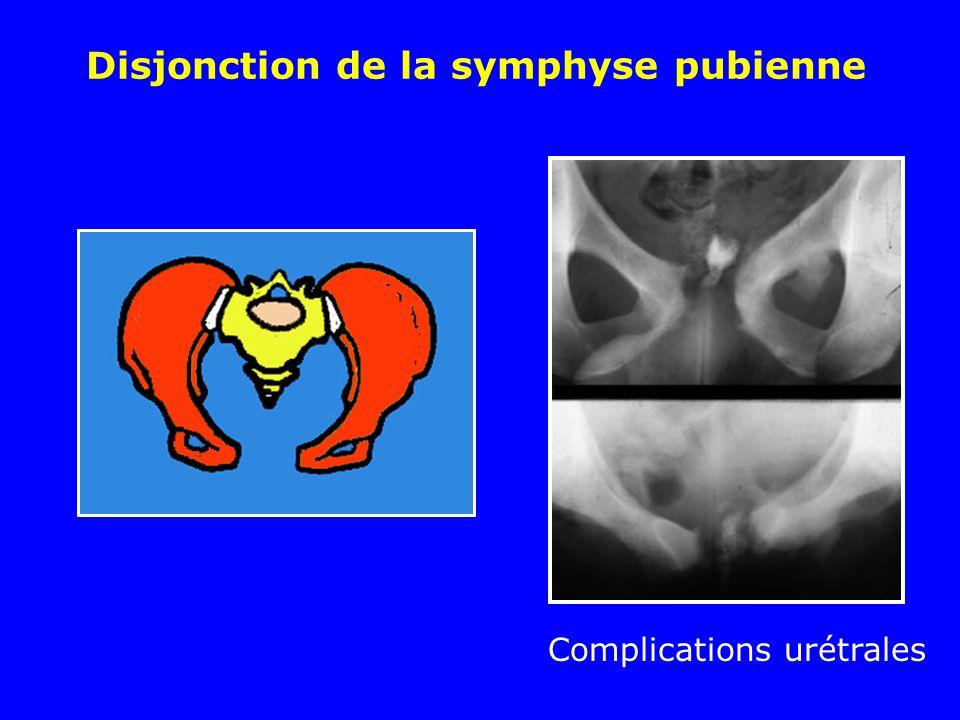 Disjonction de la symphyse pubienne Complications urétrales