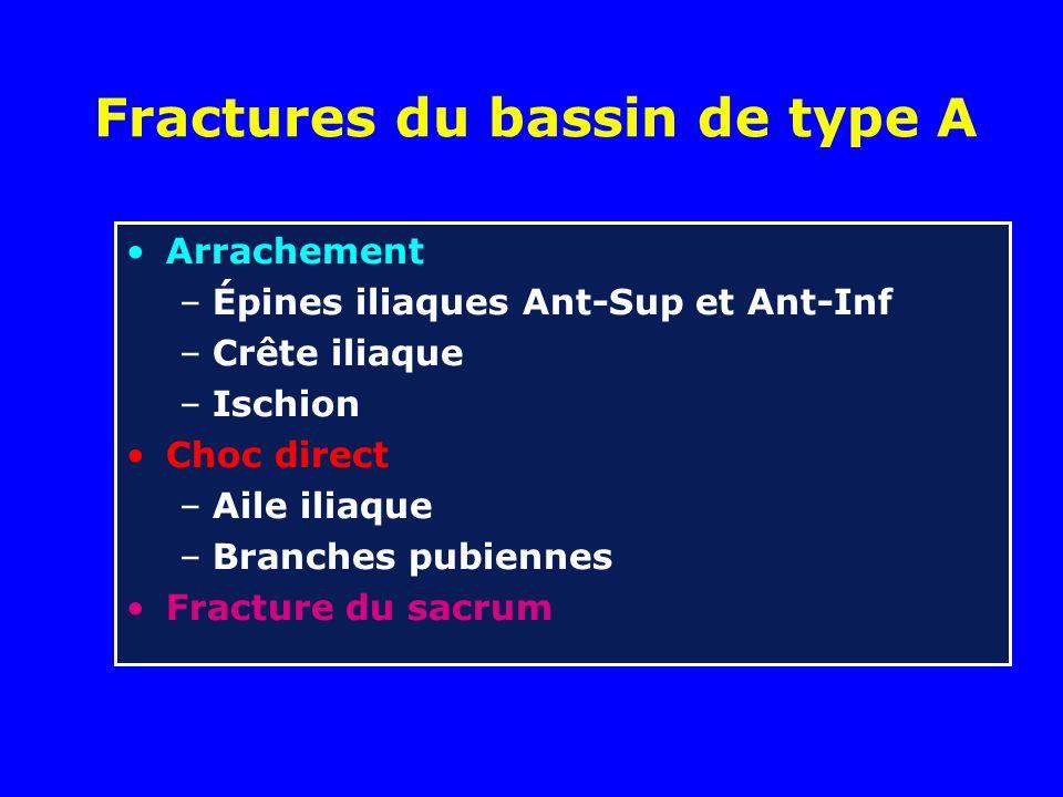 Fractures du bassin de type A Arrachement –Épines iliaques Ant-Sup et Ant-Inf –Crête iliaque –Ischion Choc direct –Aile iliaque –Branches pubiennes Fracture du sacrum