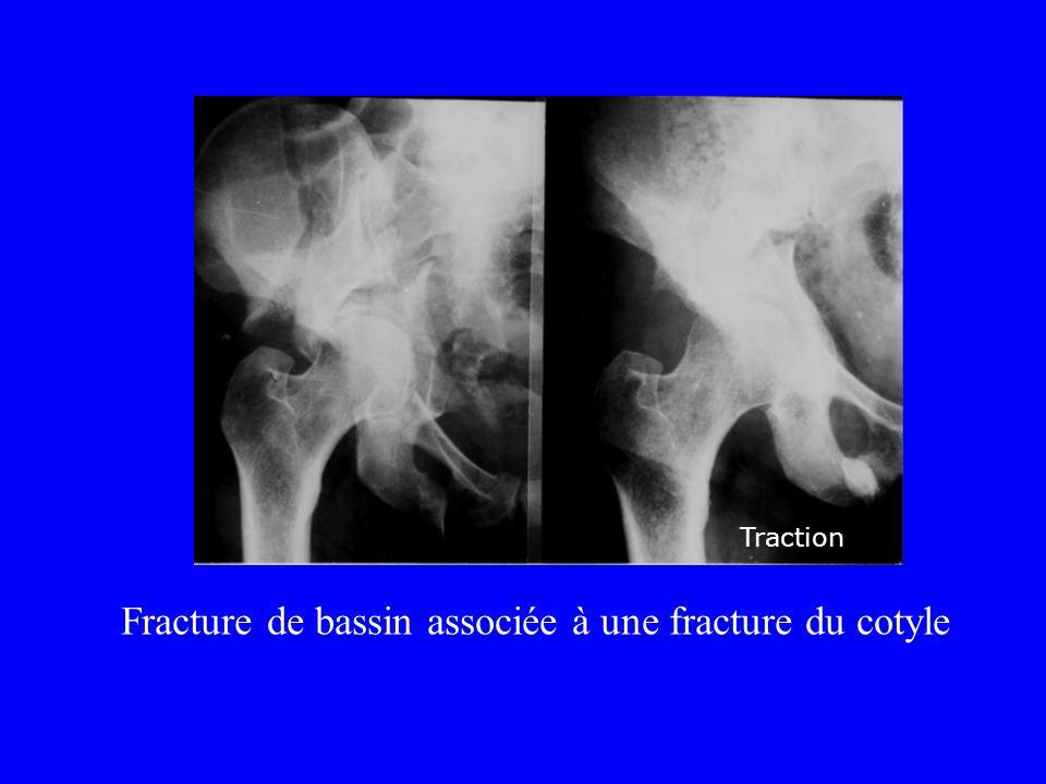 Fracture de bassin associée à une fracture du cotyle Traction