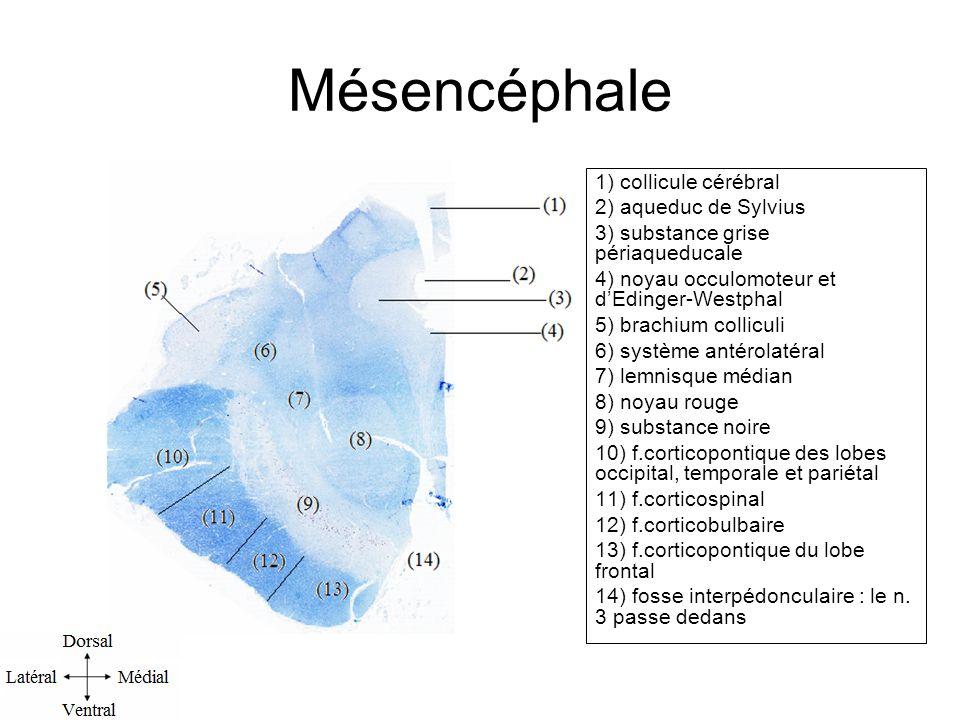 Mésencéphale 1) collicule cérébral 2) aqueduc de Sylvius 3) substance grise périaqueducale 4) noyau occulomoteur et dEdinger-Westphal 5) brachium colliculi 6) système antérolatéral 7) lemnisque médian 8) noyau rouge 9) substance noire 10) f.corticopontique des lobes occipital, temporale et pariétal 11) f.corticospinal 12) f.corticobulbaire 13) f.corticopontique du lobe frontal 14) fosse interpédonculaire : le n.