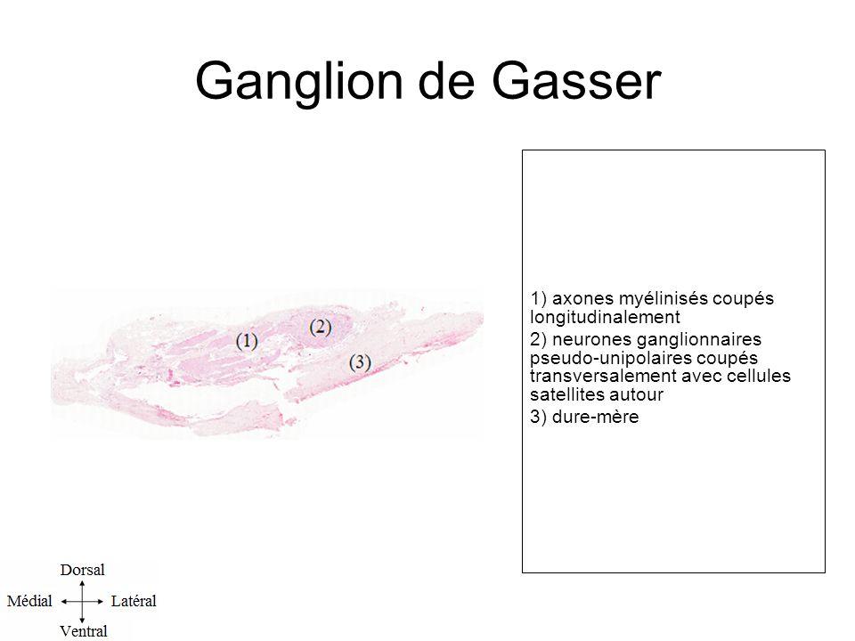 Ganglion de Gasser 1) axones myélinisés coupés longitudinalement 2) neurones ganglionnaires pseudo-unipolaires coupés transversalement avec cellules satellites autour 3) dure-mère l.