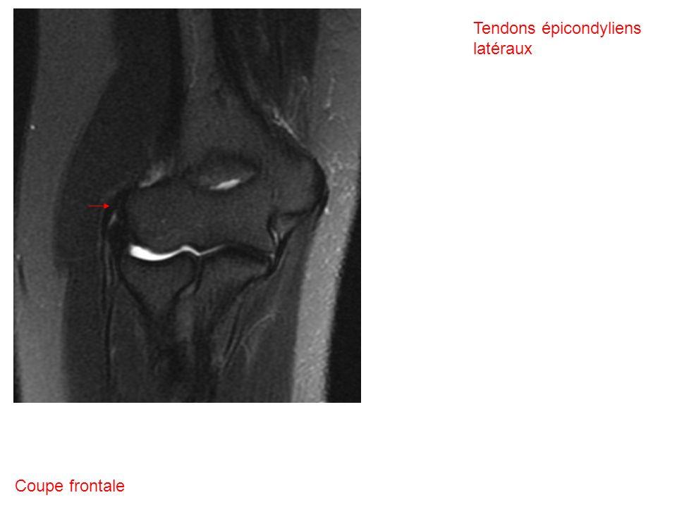 Coupe frontale Tendons épicondyliens latéraux