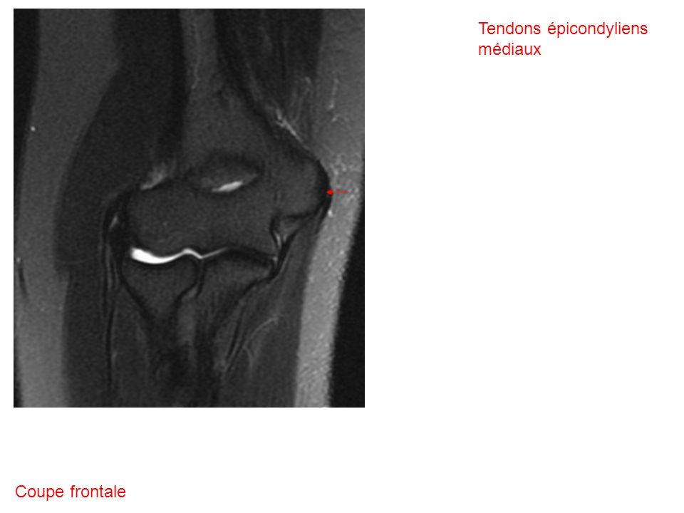 Coupe frontale Tendons épicondyliens médiaux