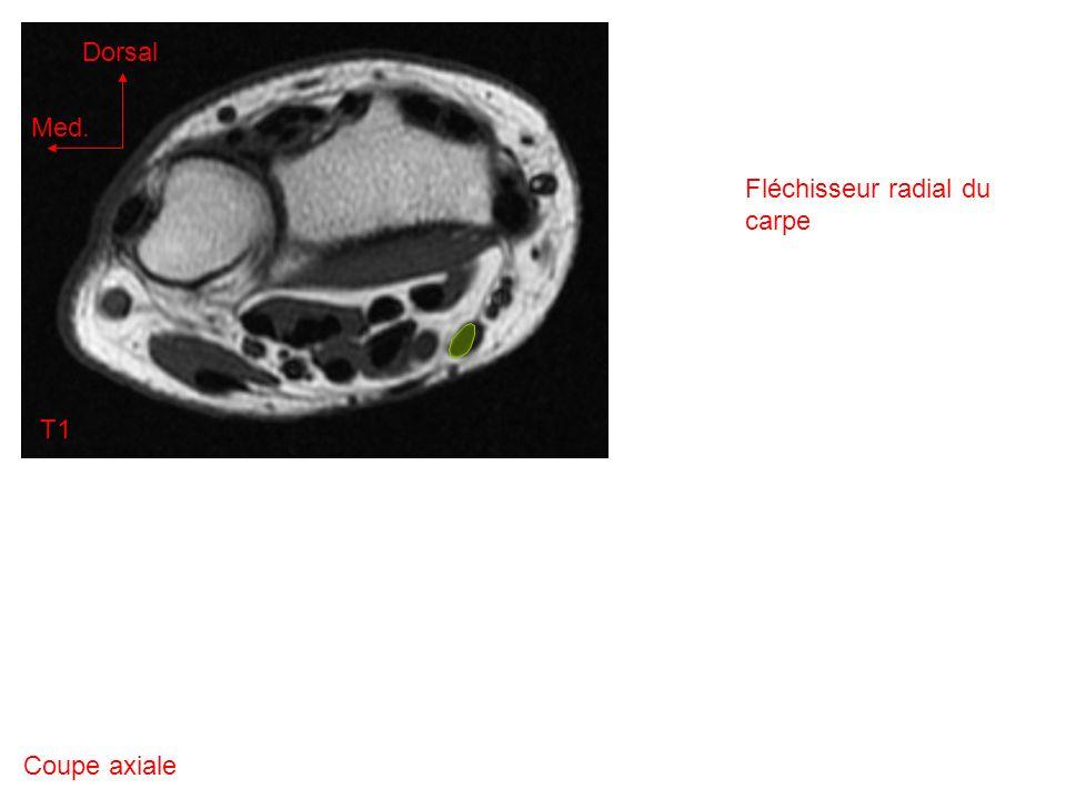 Coupe axiale T1 Med. Dorsal Fléchisseur radial du carpe