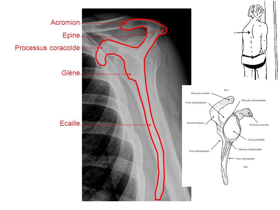 Acromion Epine Processus coracoïde Glène Ecaille