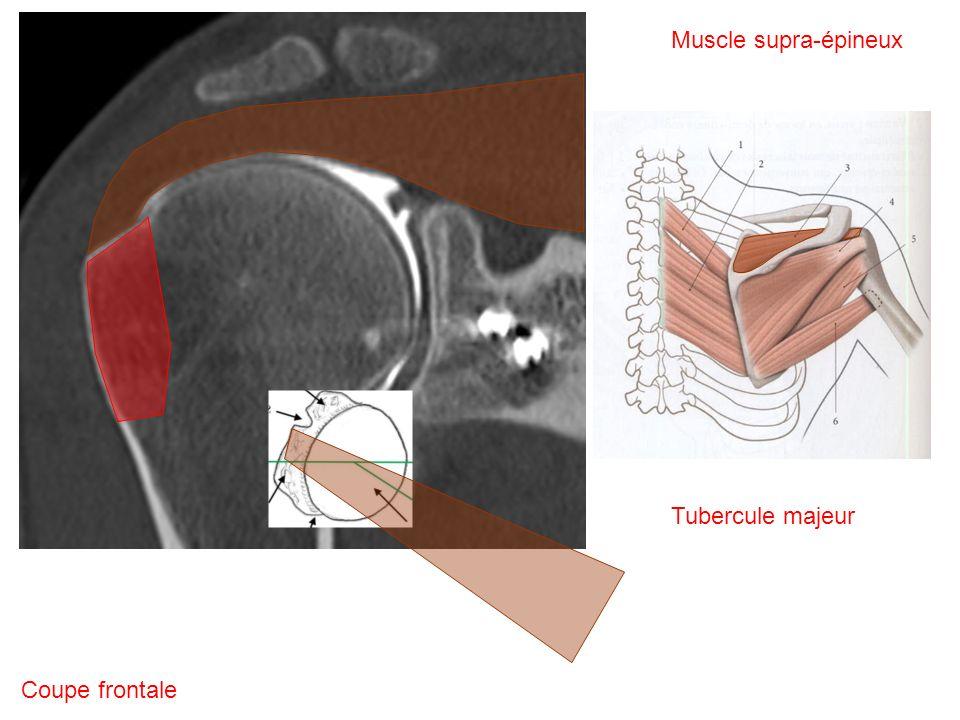 Muscle supra-épineux Tubercule majeur Coupe frontale