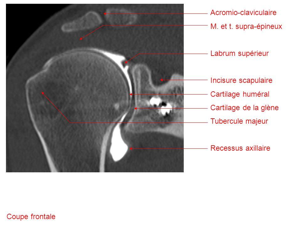 Acromio-claviculaire M.et t.