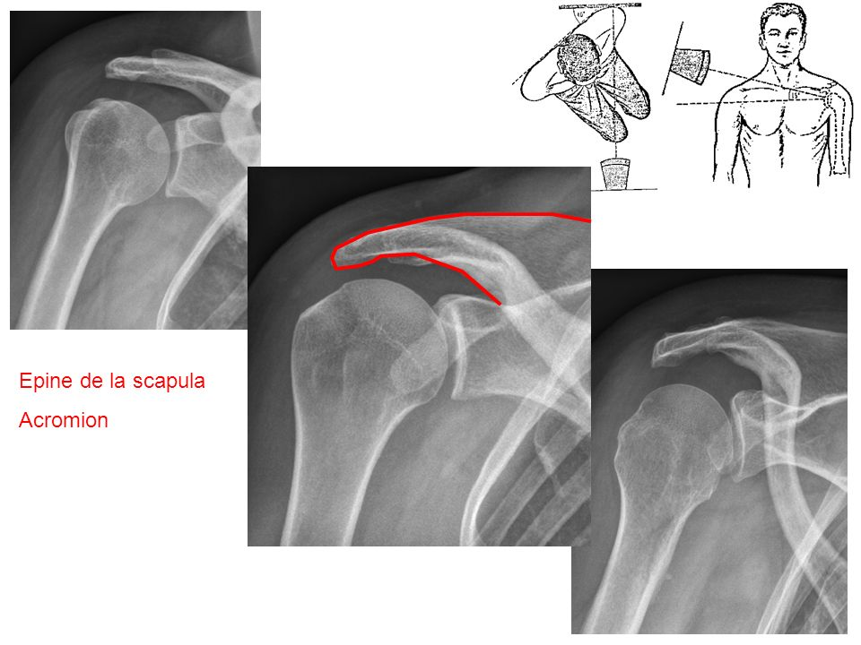 Supra-épineuxinfra-épineux Supra-épineux Tubercule majeur deltoïde infra-épineux Deltoïde Rétropulsion pour dégager lacromion, pour ne pas que les ondes radiofréquences soient arrêter par los