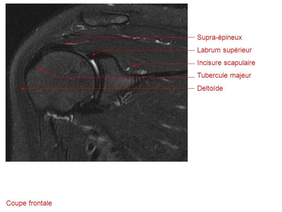 Coupe frontale Supra-épineux Labrum supérieur Incisure scapulaire Tubercule majeur Deltoïde