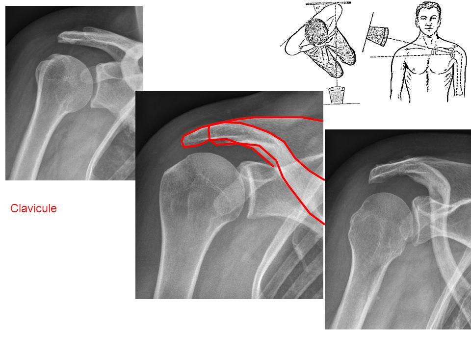 Long biceps Tubercule mineur Cartilage huméral Tubercule majeur Cartilage de la glène Coupe axiale