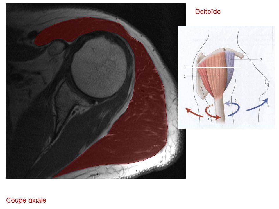 Deltoïde Coupe axiale