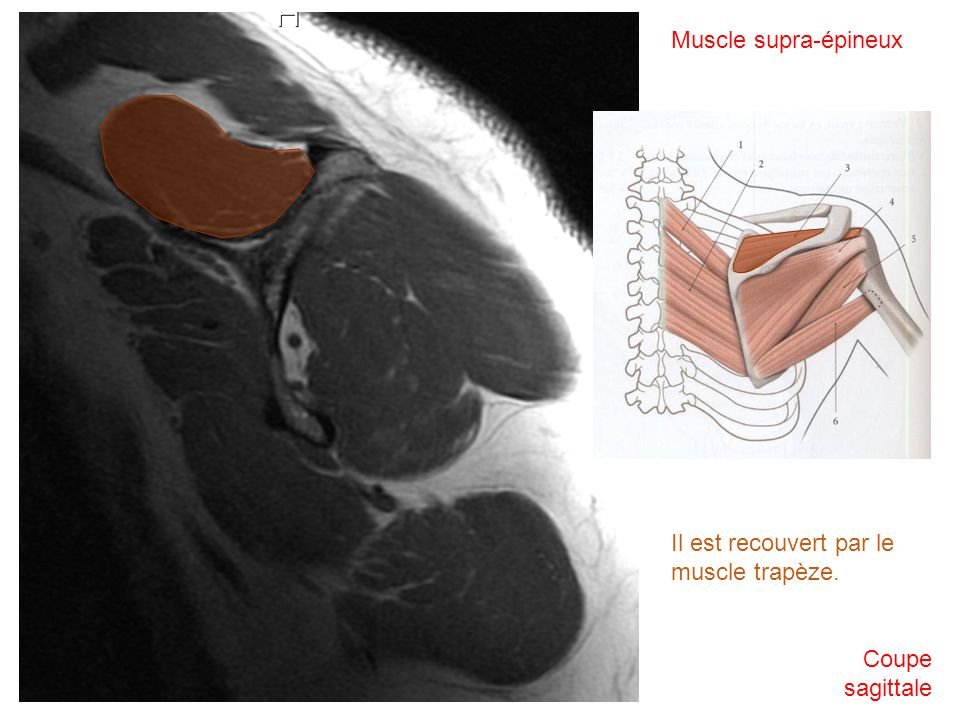 Muscle supra-épineux Coupe sagittale Il est recouvert par le muscle trapèze.