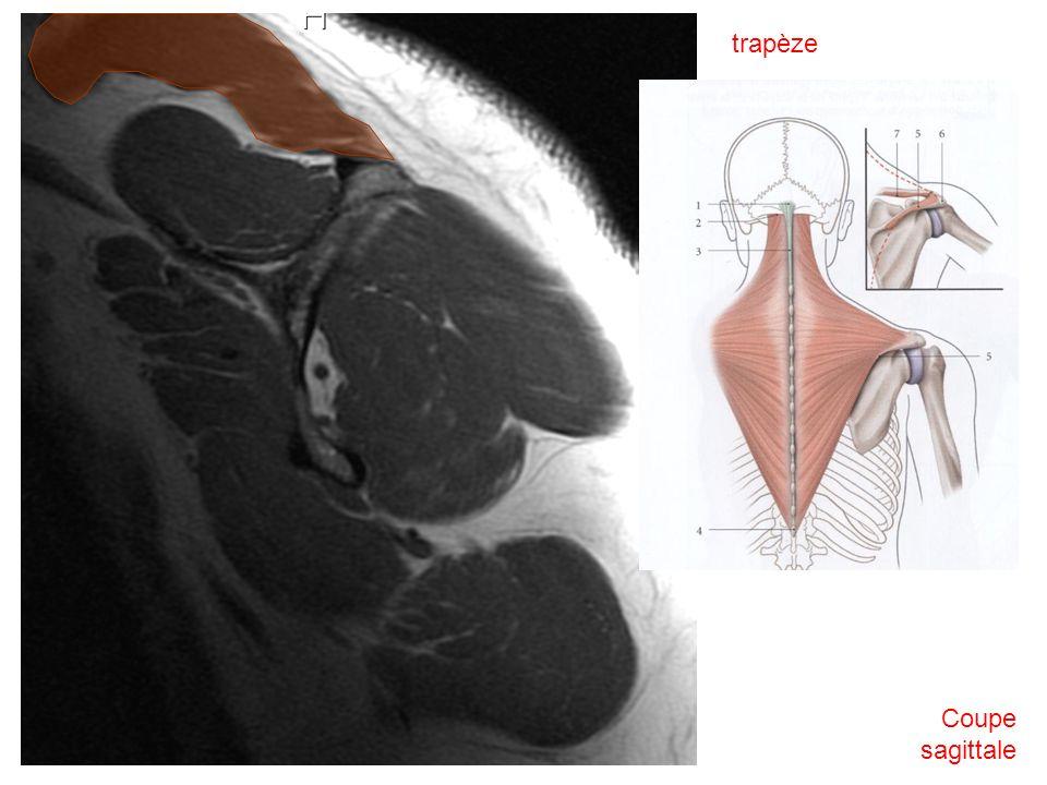 trapèze Coupe sagittale