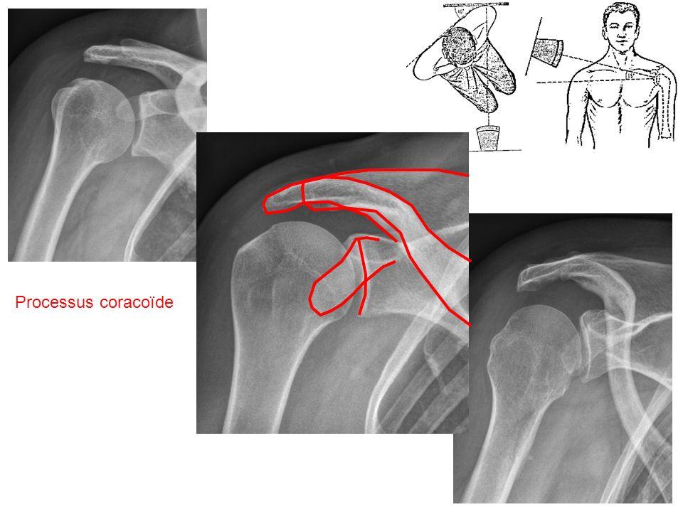 Pointe de la coracoïde Long biceps Tdon sub scapulaire Ligament gléno- huméral moyen Labrum antérieur formant un bourrelet Labrum postérieur Coupe axiale