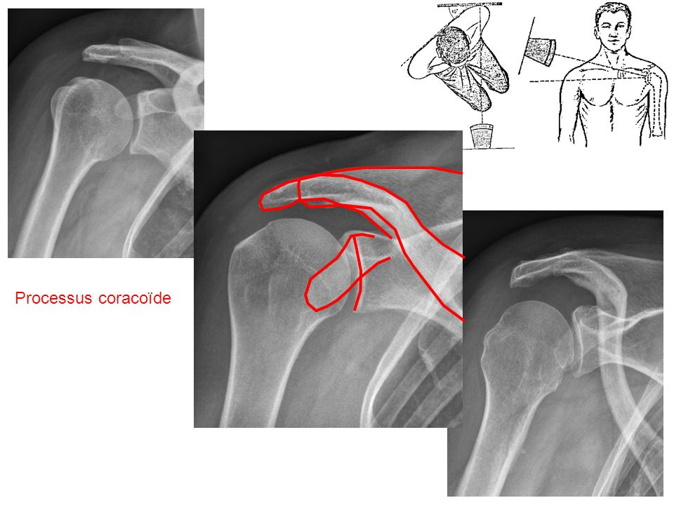 Muscle petit-rond Coupe sagittale