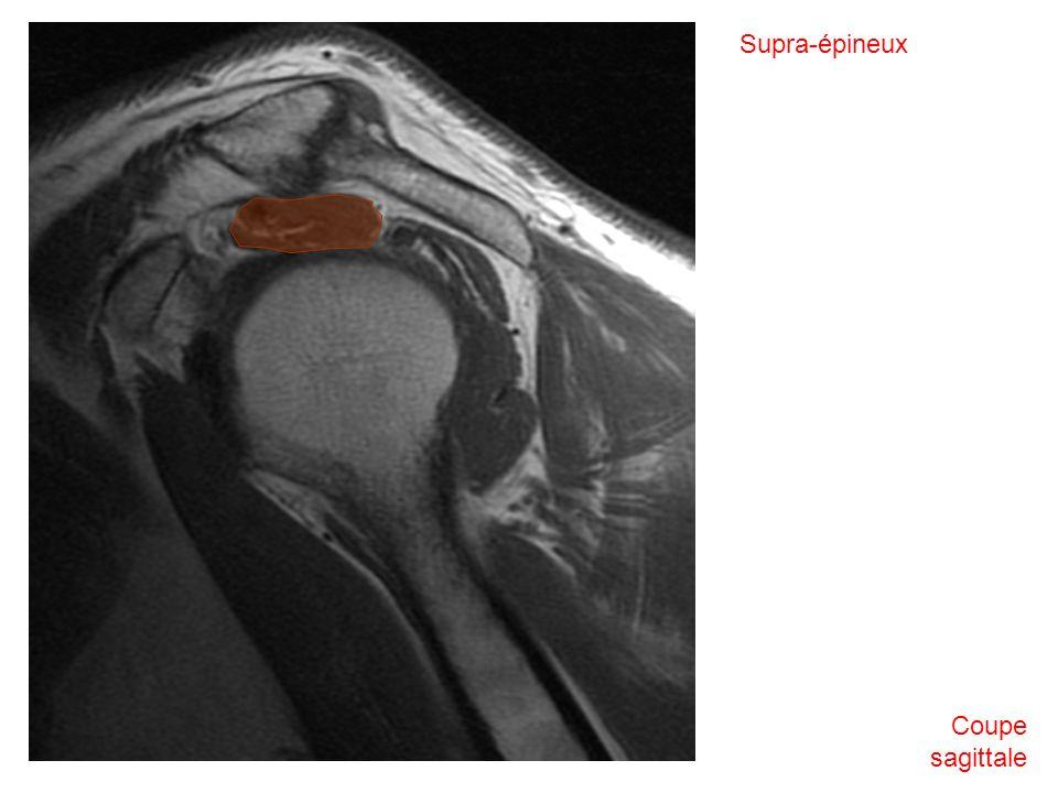 Coupe sagittale Supra-épineux