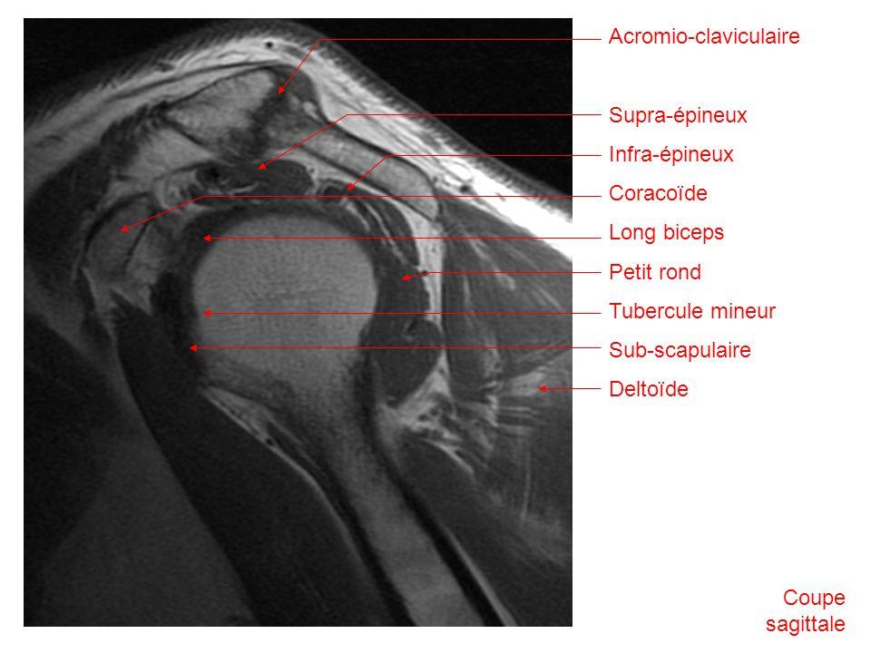 Acromio-claviculaire Supra-épineux Infra-épineux Coracoïde Long biceps Petit rond Tubercule mineur Sub-scapulaire Deltoïde