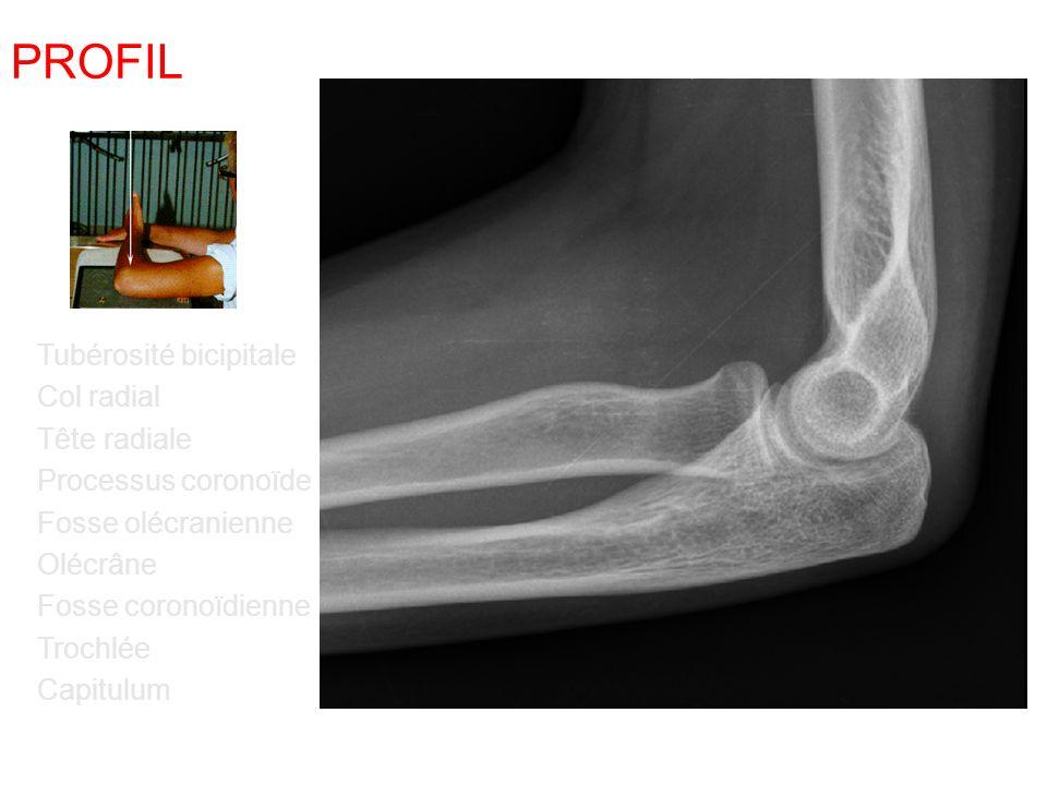 PROFIL Tubérosité bicipitale Col radial Tête radiale Processus coronoïde Fosse olécranienne Olécrâne Fosse coronoïdienne Trochlée Capitulum