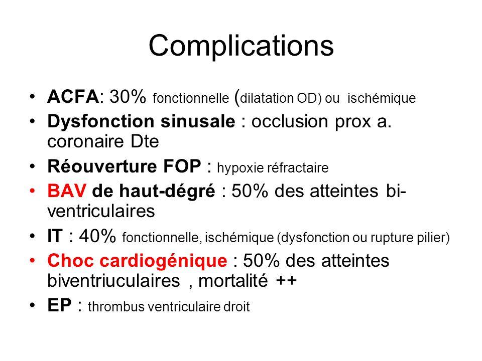 Complications ACFA: 30% fonctionnelle ( dilatation OD) ou ischémique Dysfonction sinusale : occlusion prox a.