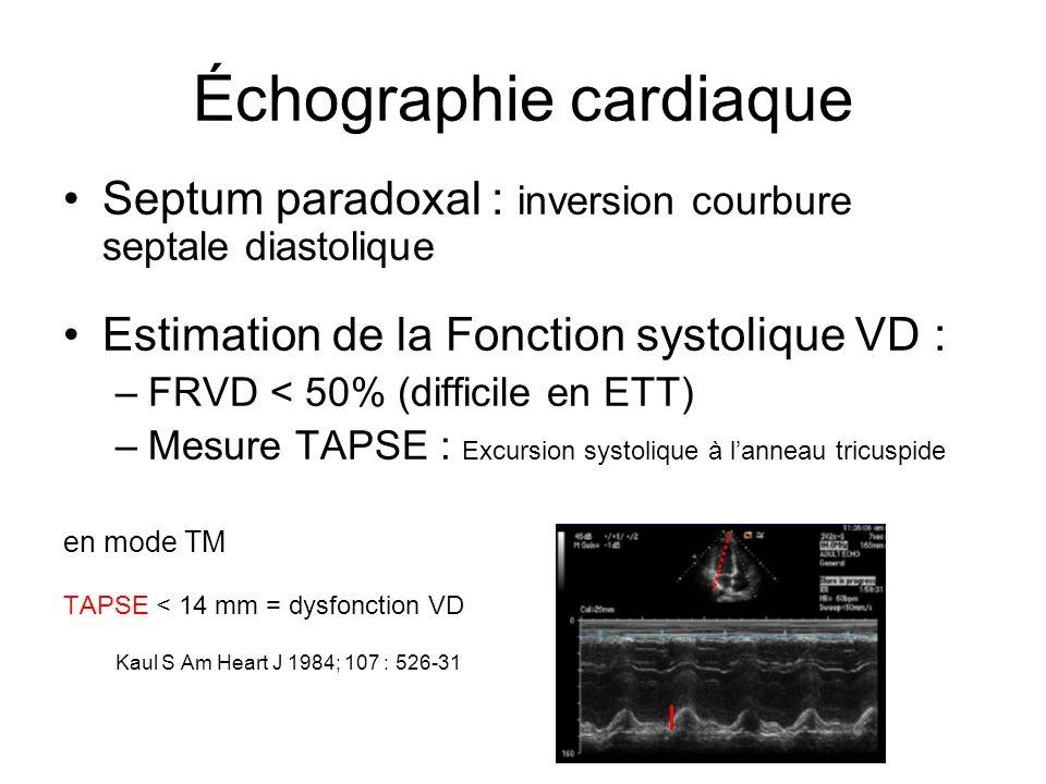 Échographie cardiaque Septum paradoxal : inversion courbure septale diastolique Estimation de la Fonction systolique VD : –FRVD < 50% (difficile en ETT) –Mesure TAPSE : Excursion systolique à lanneau tricuspide en mode TM TAPSE < 14 mm = dysfonction VD Kaul S Am Heart J 1984; 107 : 526-31